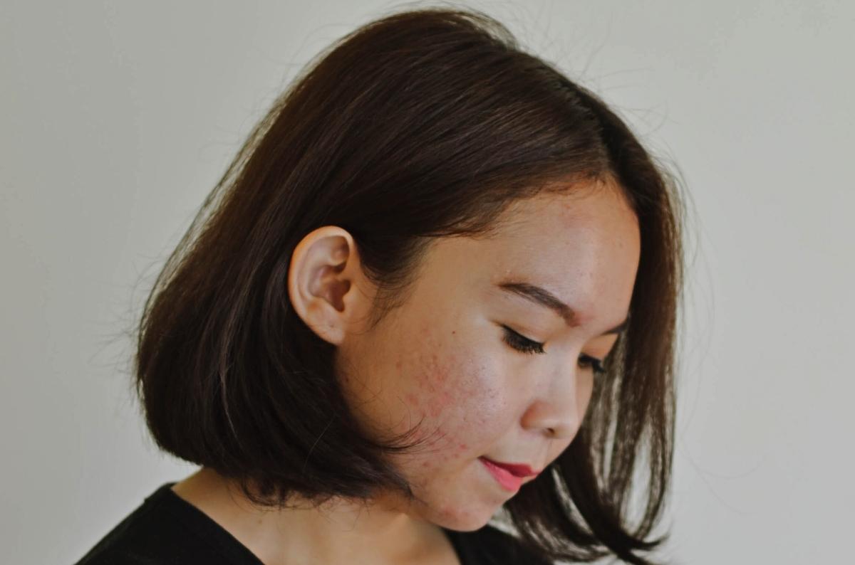 Eliminar poros dilatados