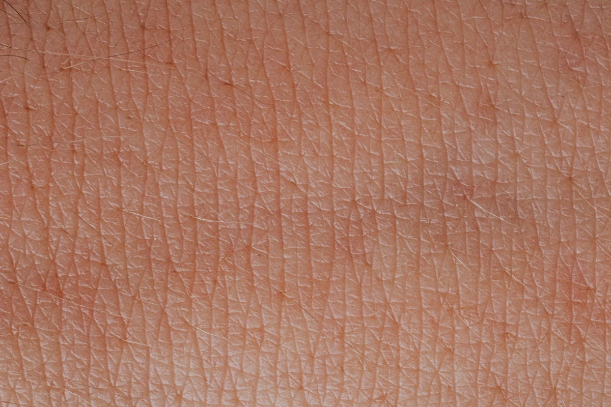 Tratar la psoriasis y la dermatitis