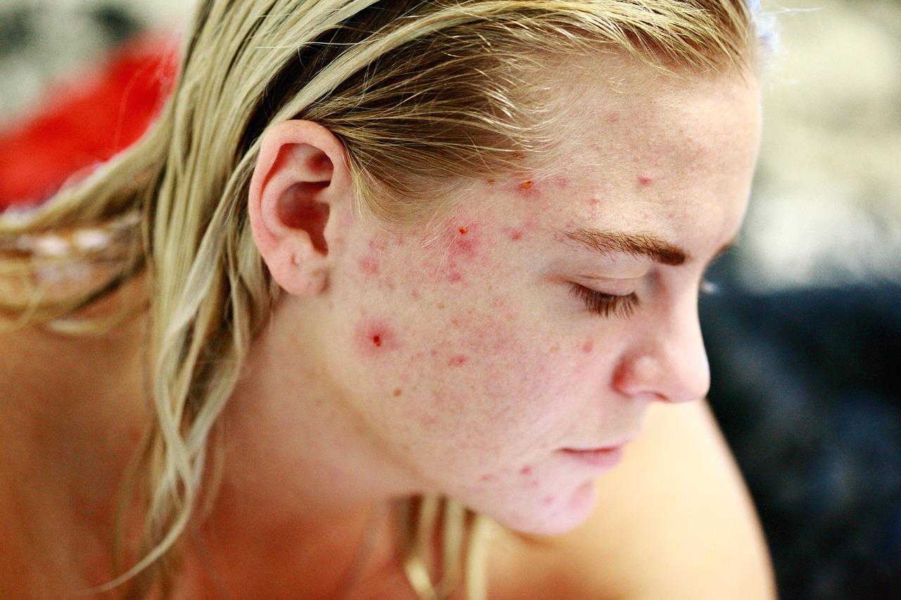 Enfermedades originadas por falta de protección en la piel