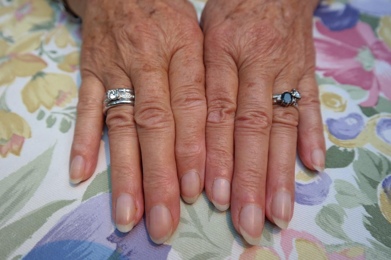 Envejecimiento prematuro de la piel y otras lesiones