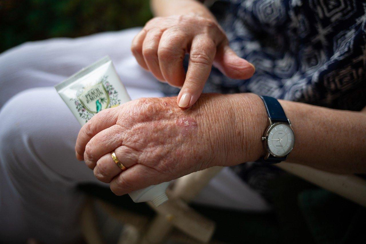 Síntomas del eczema en manos