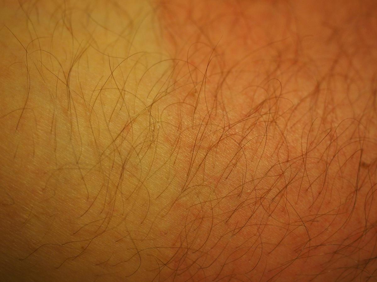 Qué es la piel atópica