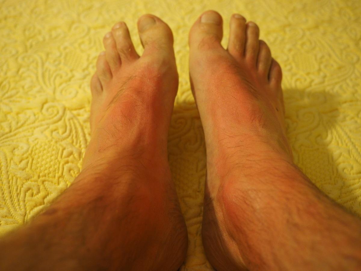 Síntomas de la dermatitis atópica