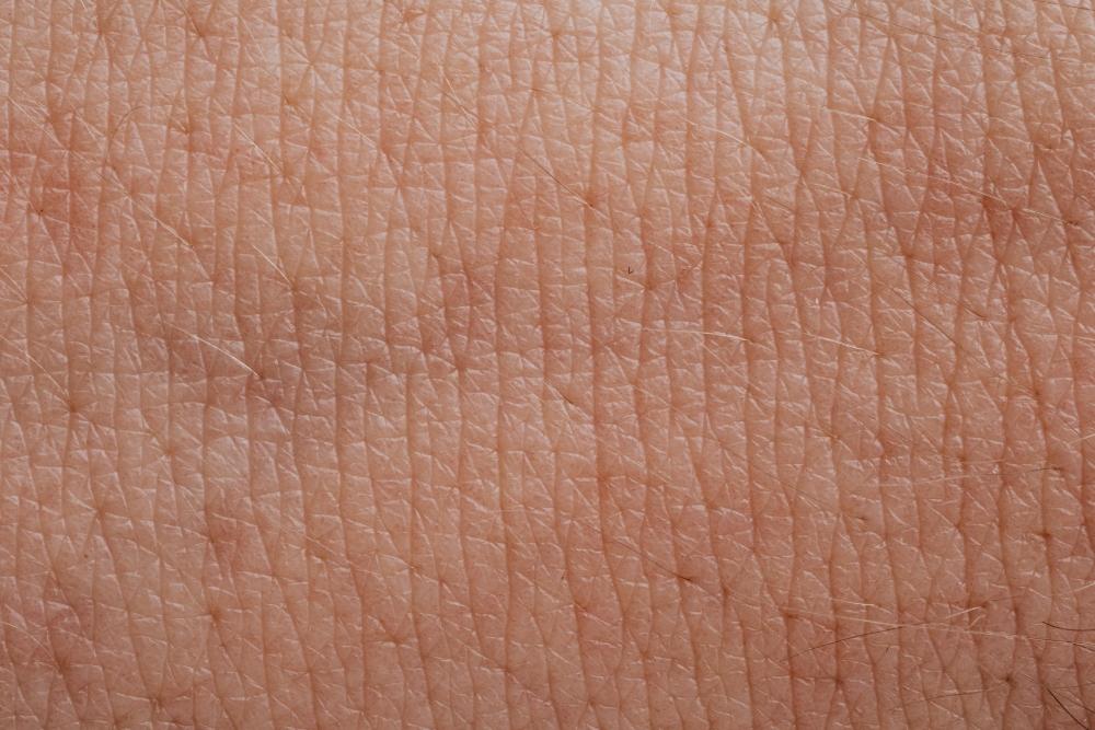 ¿Es apta para todas las pieles?